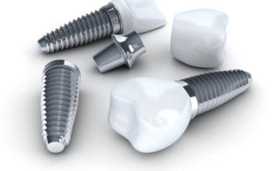 Implanty Rzeszów - leczenie implantologiczne Rzeszów implanty