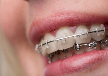 ortodoncja Rzeszów ortodonta